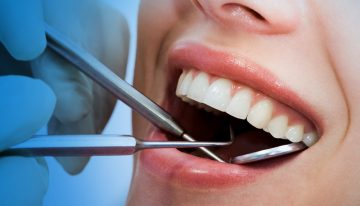 Dental Treatments That You Might Need