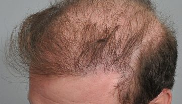 Combined Technique of FUT+FUE Hair Transplant: When & How