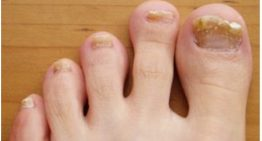 Fungal Nail Infection And What Can Sports Podiatrist Do For You