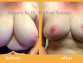 Breast Reduction Surgery, Why It's Done