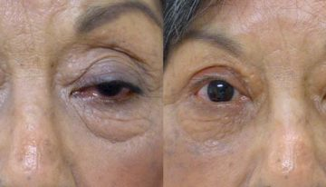 What is Superior Blepharoplasty