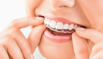 How Does Invisalign Work? Here's What You Need To Know