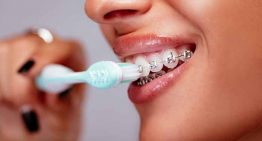 5 Tips For Taking Care Of Your Braces